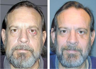 Burbank plastic surgery eyelid