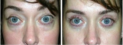 Bilateral Upper And Lower Eyelid Blepharoplasty