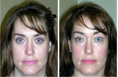 Eyelid and Bilateral Lower Eyelid Retraction Repair