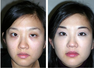 Eyelid Ptosis Repair