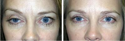 Blepharoplasty eyelid surgery photo results