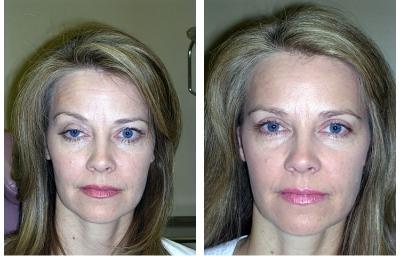 Blepharoplasty is eyelid surgery