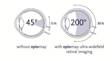 Optos wide field imaging allows us to see more of your inner eye