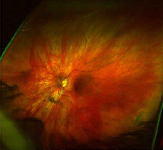 retinal image from Optos system shows eye damage